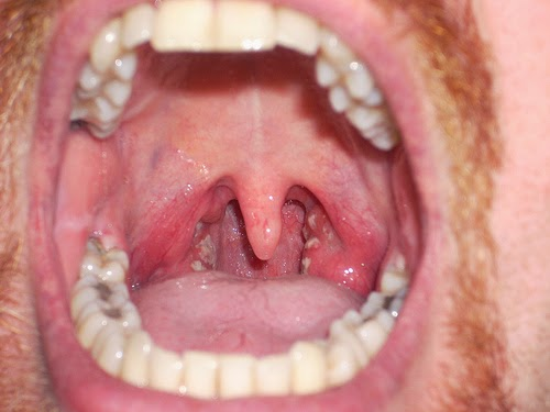 How To Get Rid Of Mucus in Throat Naturally