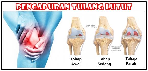 Obat Pengapuran Tulang Lutut Yang Ampuh