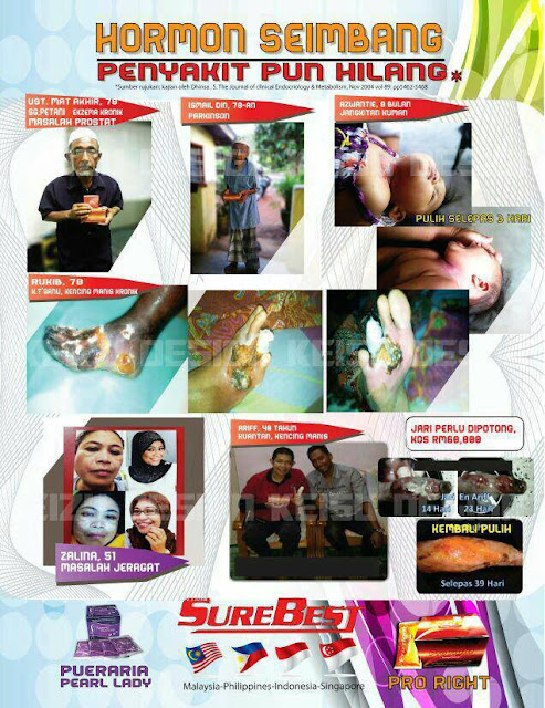 Testimoni Produk SureBest Pro Right