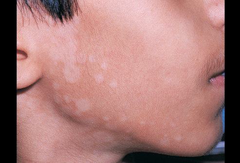 how ringworm affects people Find out more about ringworm including associated symptoms, what causes it  and how it can be treated.