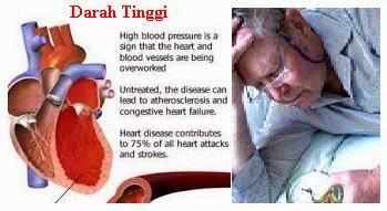Obat Penurun Darah Tinggi