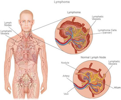 a study of non hodgkins lymphoma Basic information about non-hodgkin lymphoma from the experts at webmd.