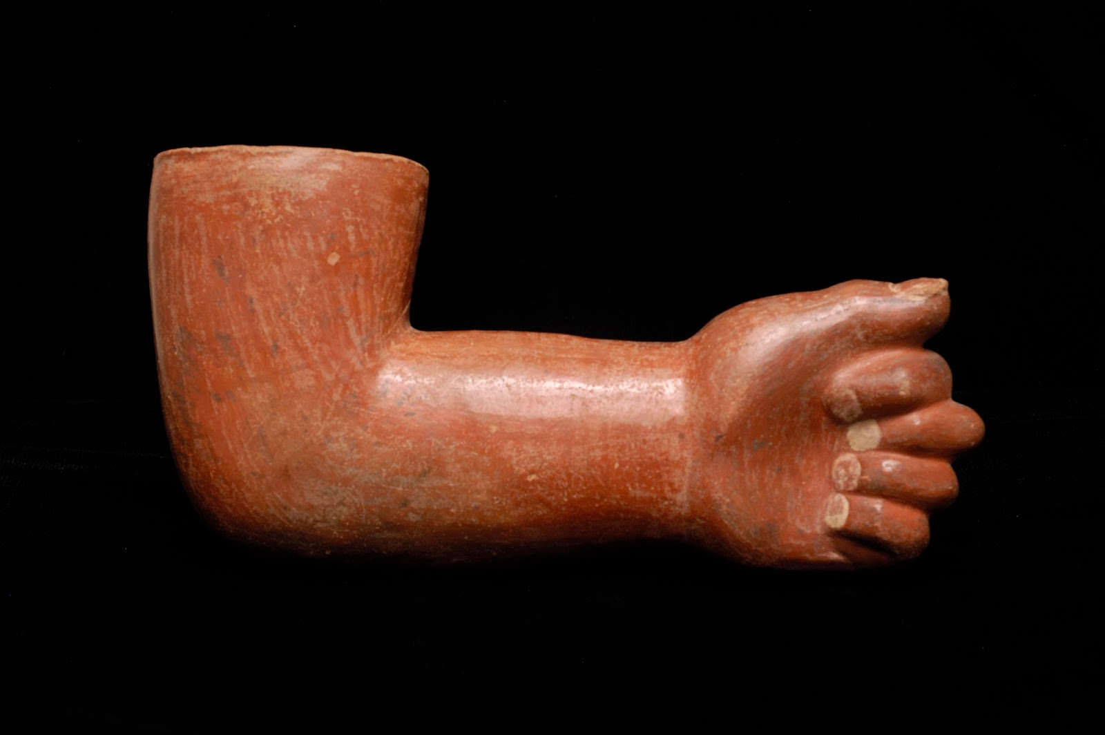 Vessel of a human forearm
