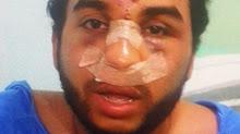 Estudiante golpeado en Aragua sufrió triple fractura