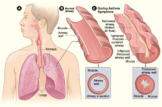 Nursing Care Plan for Asthma Nursing Diagnosis Nursing Intervention and Rational for Asthma