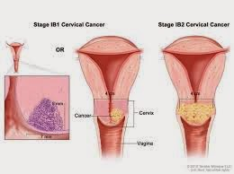cervical cancer tips