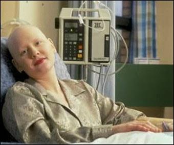 Efek Kemoterapi bagi kesehatan