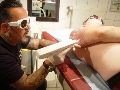 enlever les tatouages au laser tattoo removal