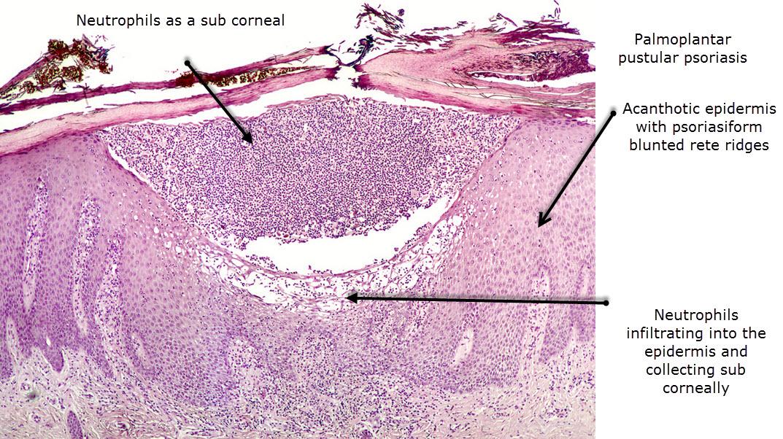 Inflammatory infiltrate in psoriasis vulgaris 1