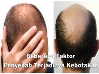 Beberapa faktor umum yang menjadi penyebab dari terjadinya kebotakan adalah rontoknya rambut secara berlebihan.