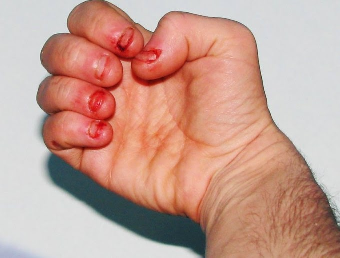 Man Dies From Heart Attack Caused By Severe Nail-Biting Habit