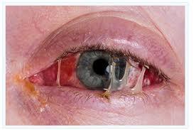 Dog Eye Ulcer Rupture Symptoms