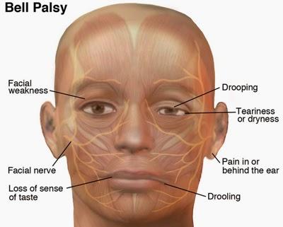 முக பக்கவாதம் – Bells Palsy -  Facial Nerve Paralysis sikichai