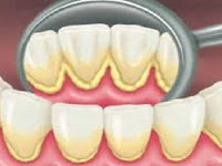 Lima Resep Sederhana Hilangkan Plak di Gigi