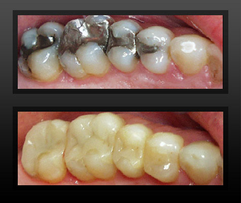 Homemade Permanent Tooth Filling