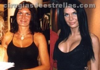Yola Berrocal antes y después de los implantes