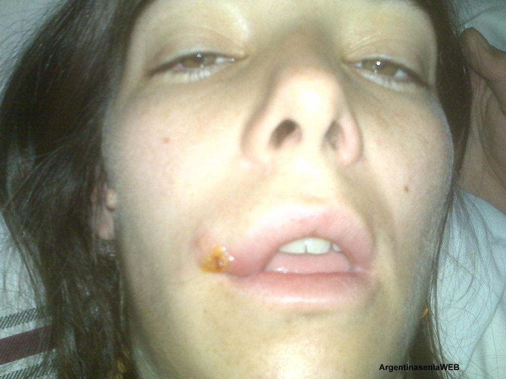 La famosa y su herpes
