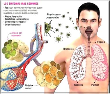 Trombo embolia pulmonar bilateral
