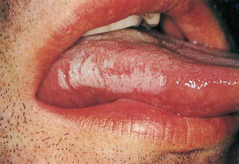 Healthy Ranula: White Lesions of Oral Mucosa