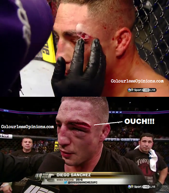 Diego Sanchez cut blood eye injury in UFC 166 versus Gilbert Melendez