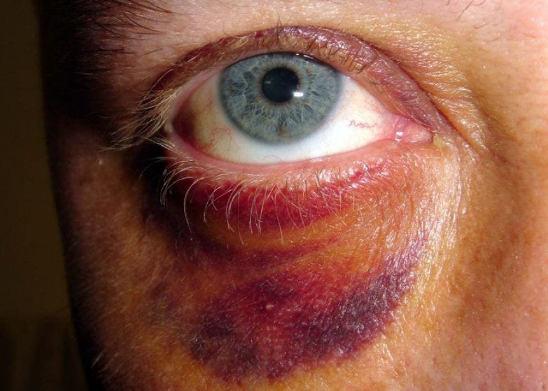 Синяк глазом лечение в домашних условиях 937
