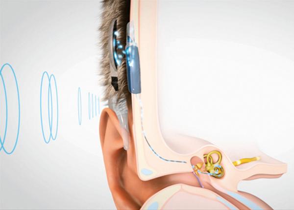 25-de-febrero-Día-internacional-Implante-Coclear