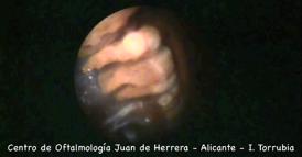 Endoláser para la cirugía de Glaucoma - 2011