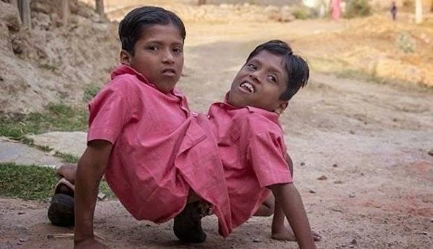 Kembar Siam di India Ini Dianggap Jelmaan Dewa