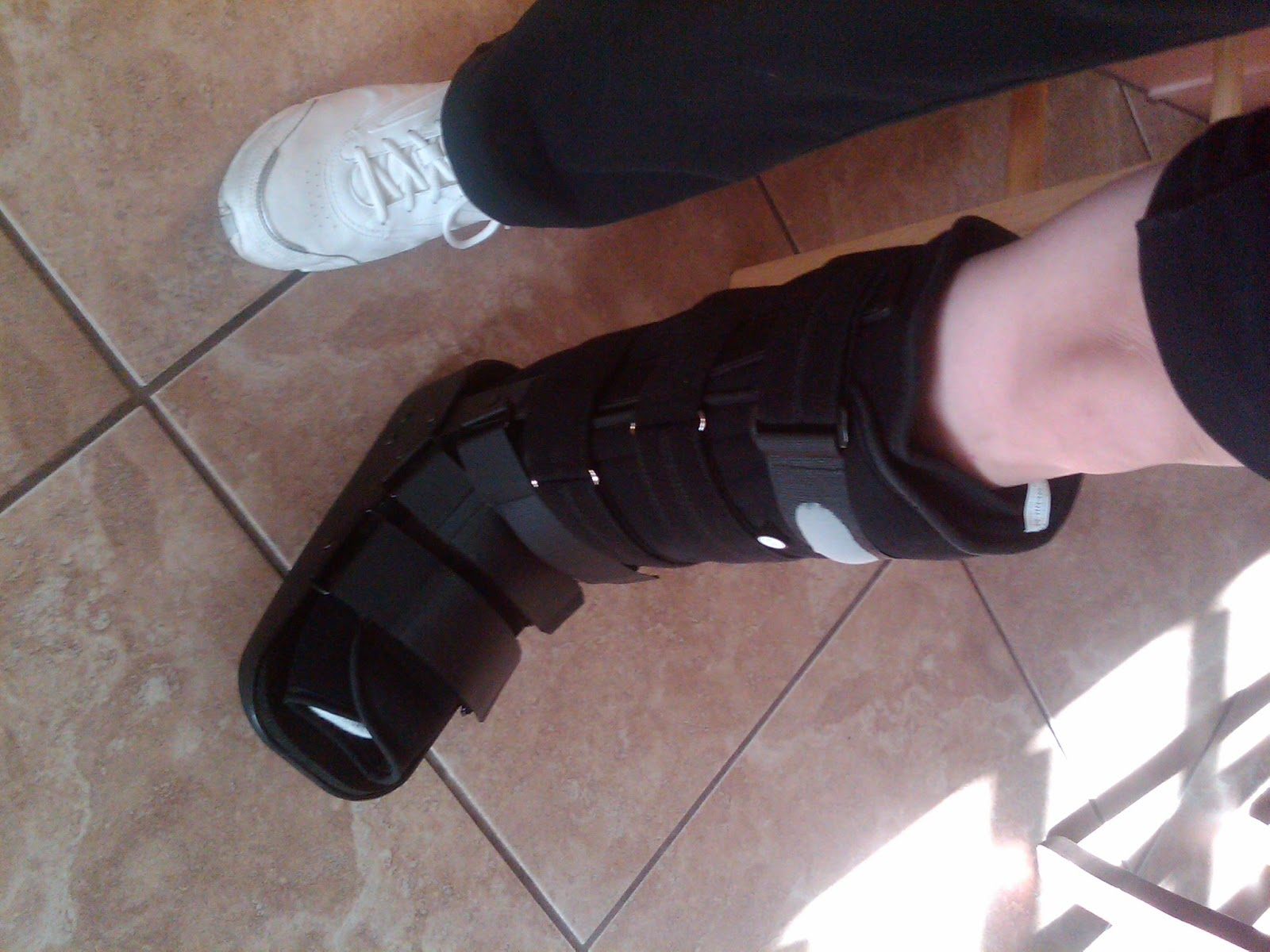 have been recovering from that fracture for 4 months now but have -4.bp.blogspot.com