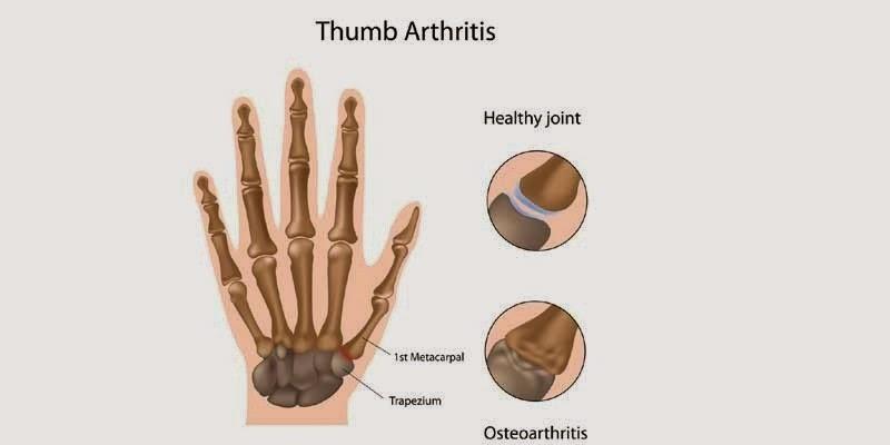 Osteoarthritis of the Thumb