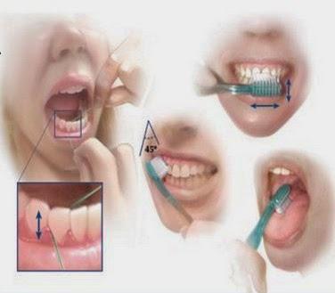 Cara Menjaga Kebersihan Mulut