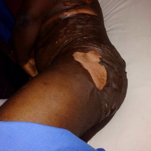Photo: Angry Wife Pours Hot Water on Husband in Abuja