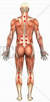 titik bekam untuk sakit pinggang