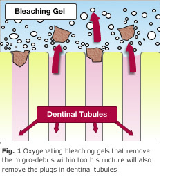 how to get rid of tooth sensitivity pain