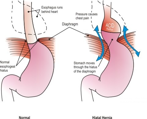 Hiatus Hernia Info: Signs & Symptoms of the Hiatus Hernia