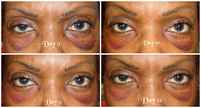 African American Ethnic Blepharoplasty (Eyelid Surgery) Day 9 - Day 12