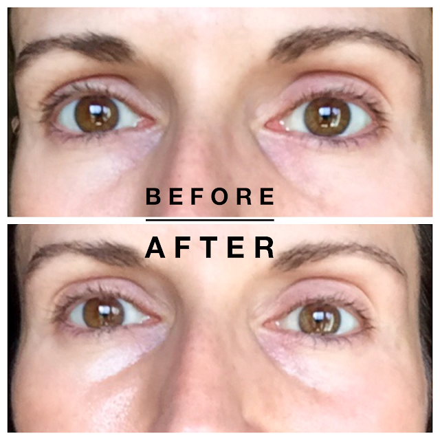 Shiseido Eye Mask Review before & after, shiseido retinol eye mask review