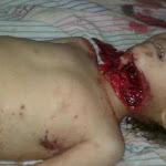 Korban Revolusi Suriah