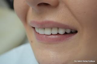 zirkonyum diş kaplama fiyatı