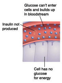vivix rawat diabetes, vivix shaklee, vivik, cara vivix merawat diabetes, rawat diabetes, rawat kencing manis, resistaensi insulin, kencing manis
