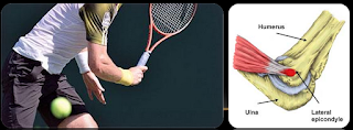 tennis elbow injuries