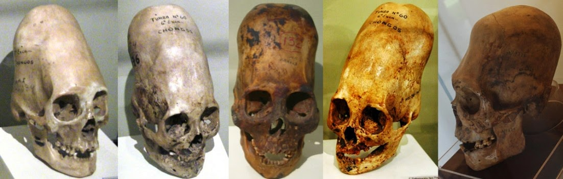 DNA Analysis of Paracas Elongated Skulls Released: Unknown To Any Human, Primate, or Animal