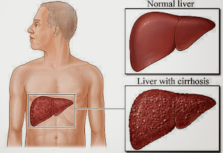 Cirrhosis Of The Liver Causes, Symptoms, Diagnosis, Treatment