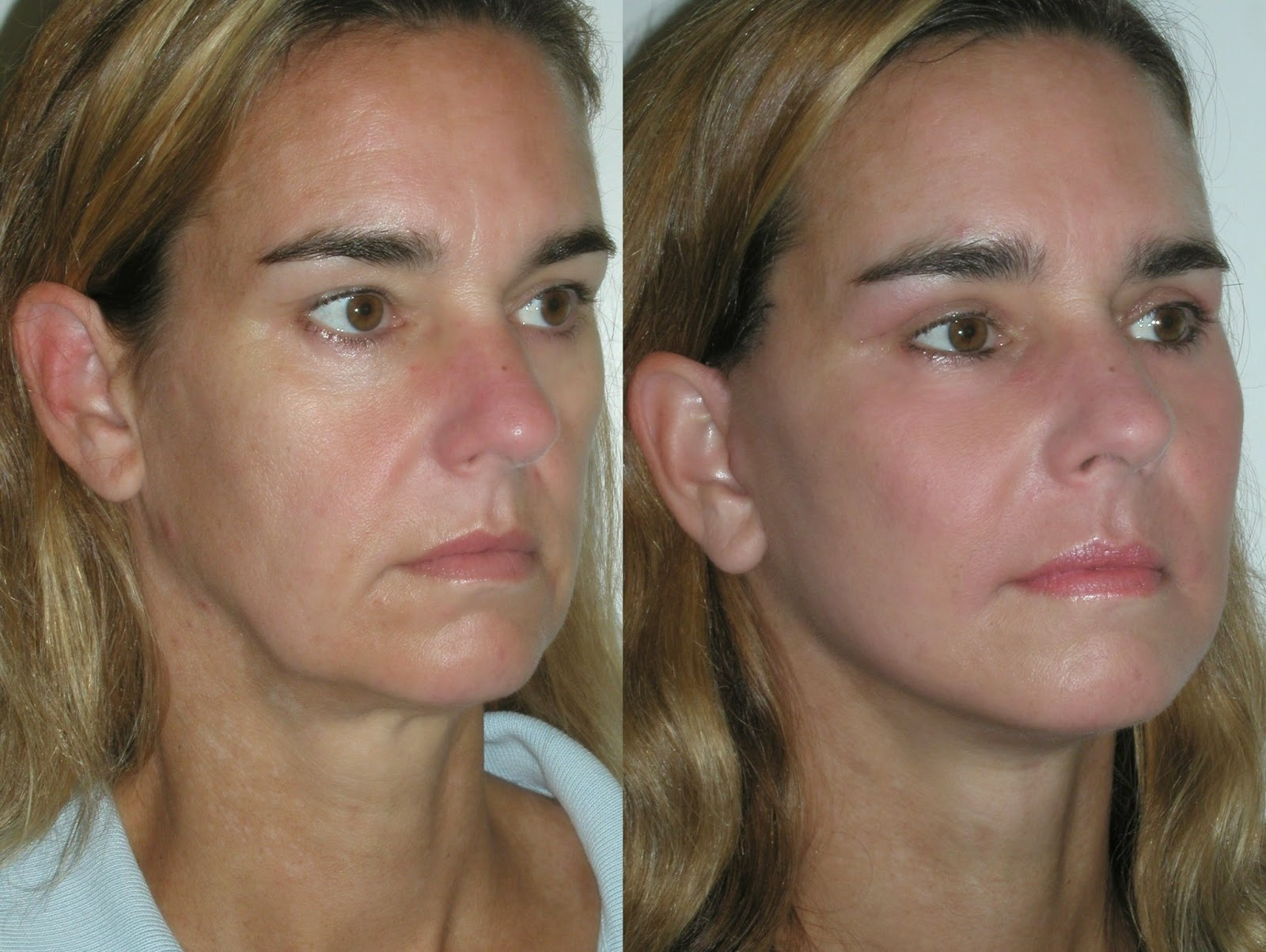 How To Look Younger With Facial Toning And Exercises
