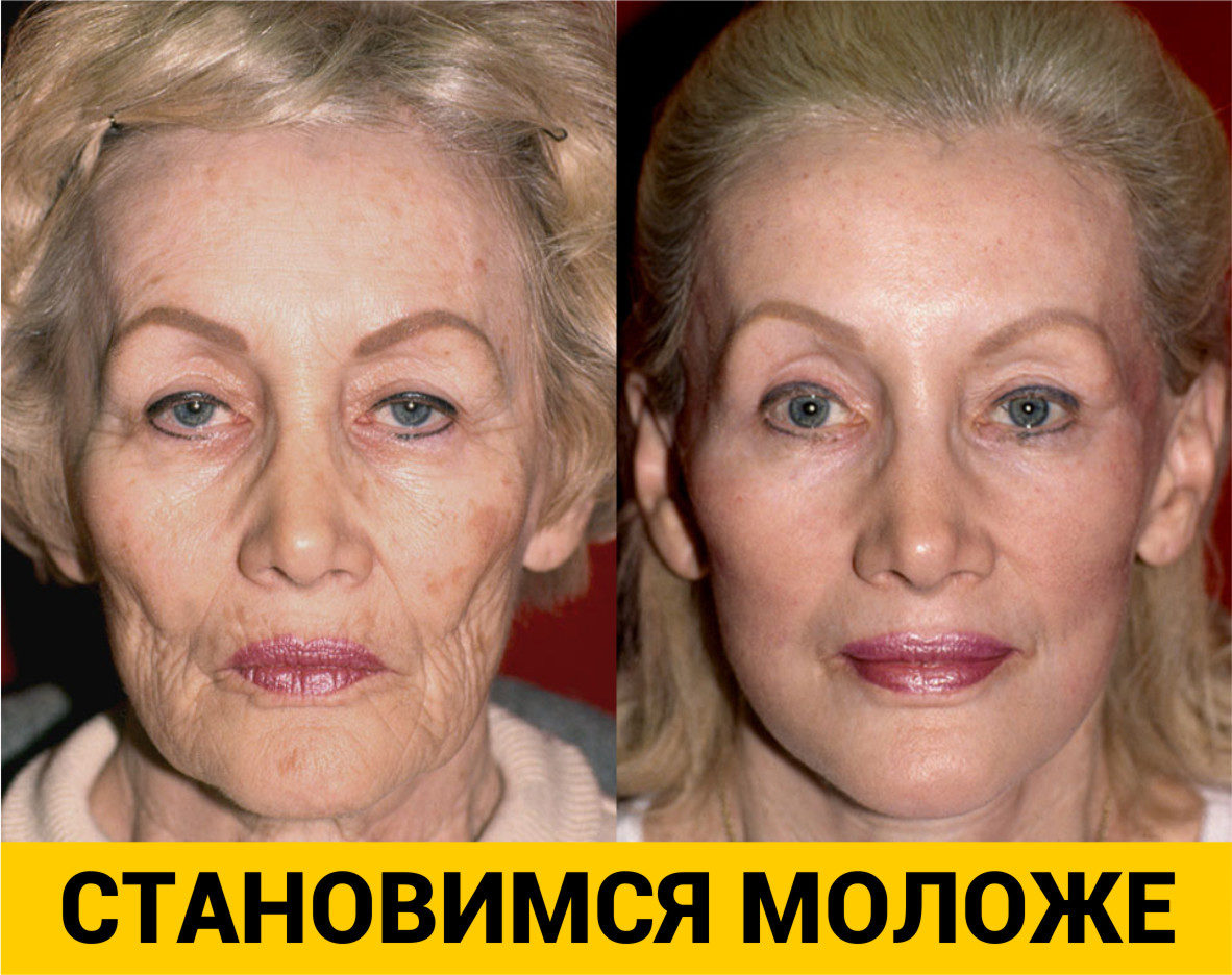 plastic surgery against essay 100% free papers on plastic surgery essay sample topics, paragraph introduction help, research & more class 1-12  why are people against plastic surgery.
