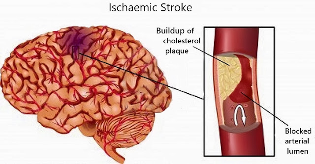 Treathypertension.blogspot on Ischemic Stroke