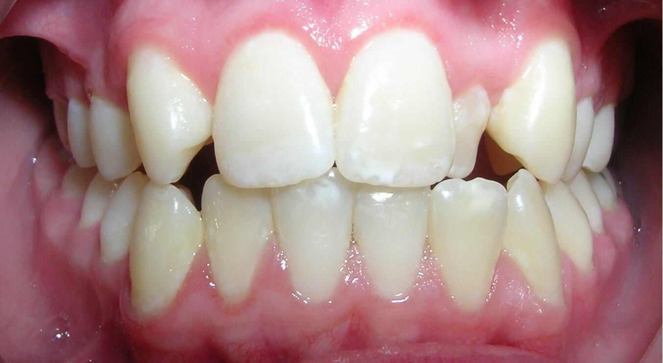 how to clean build-up of orthodontic retainer