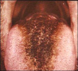 steroids numb tongue
