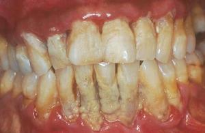 tips menghilangkan plak atau karang gigi