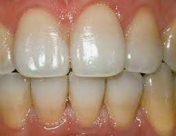 Tips Cara Menghilangkan Plak Pada Gigi Dengan Mudah Kesehatan